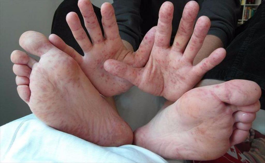 Лечение вируса Коксаки у детей